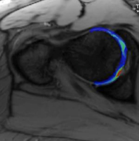 Cartilage Mapping Image