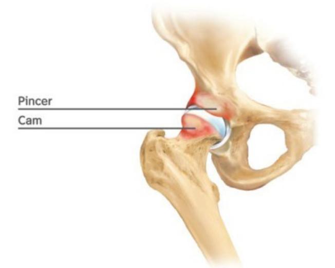 Sport Hip Injuries