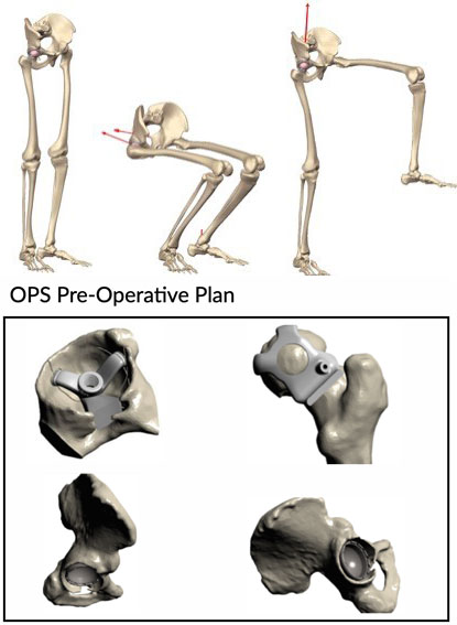 Types of Hip Surgery with Mr Giles Stafford Orthopaedic